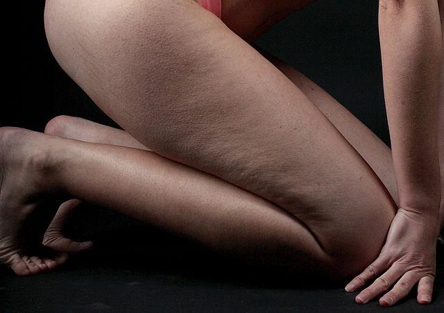 Celluliter på ben