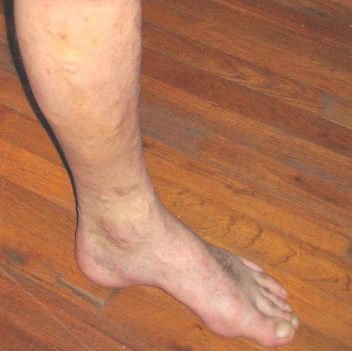Åderbråck på ben, vaden